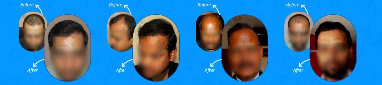 Dermalife-before&after