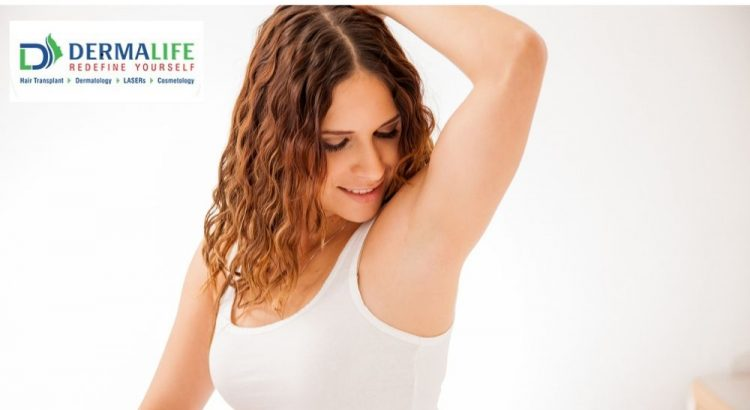 Laser Hair Removal Treatment Is It Safe For Skin Dermalife Blog