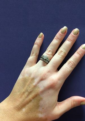 Vitiligo treatment – Dermalife Blog