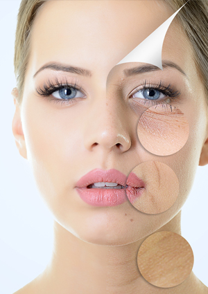 Botox Treatment in south delhi