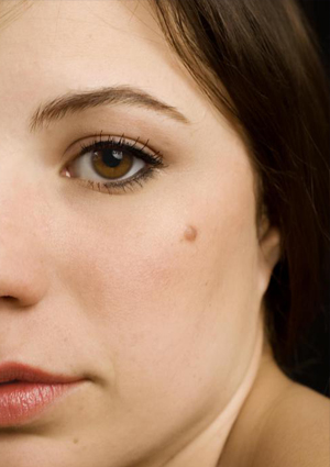Mole removal treatment in Delhi