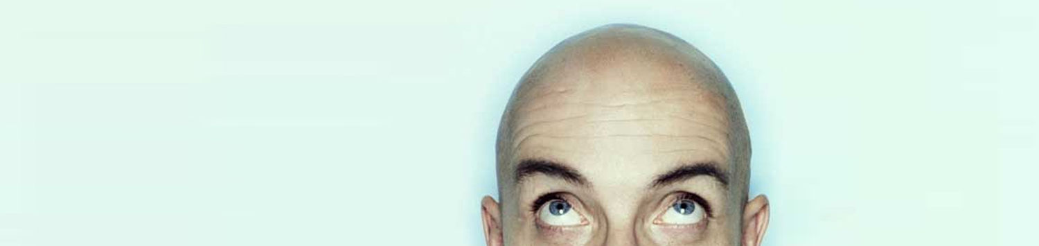 Male Baldness treatment in Delhi
